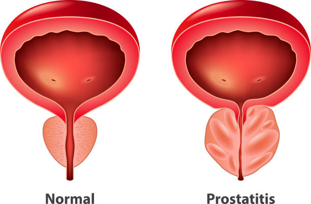 FDA Approves First Oral Hormone Therapy for Treating Advanced Prostate Cancer