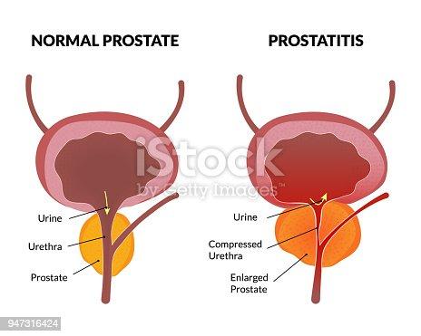 A prosztatitisre