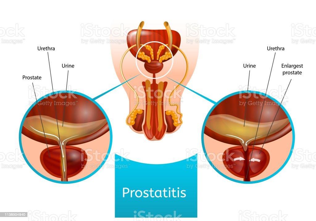 tipos de arte de imagen de prostatitis