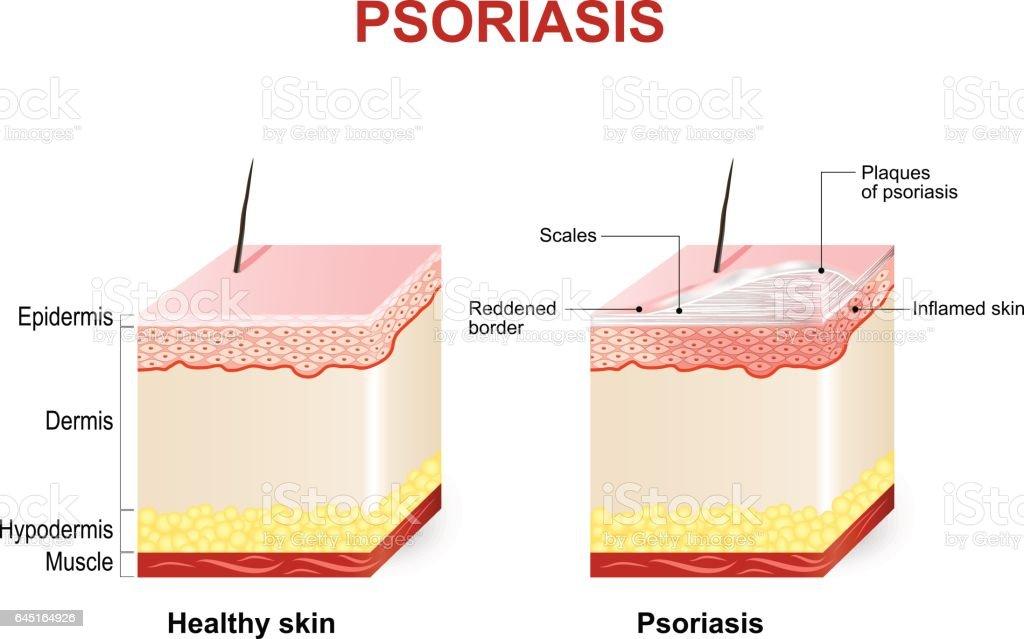 Psoriasis vector art illustration