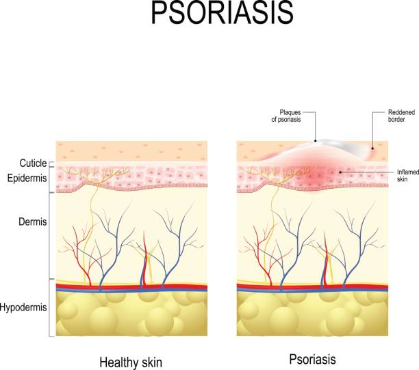 Psoriasis vector art illustration