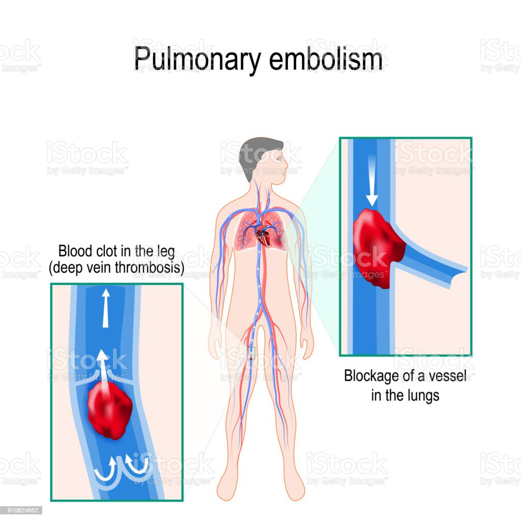Pulmonary embolism. Human silhouette with highlighted circulatory system. vector art illustration