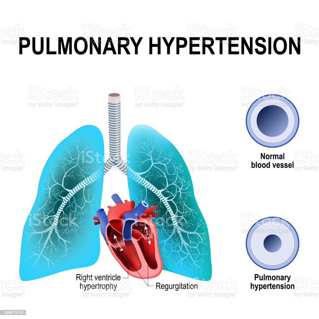 Pulmonary hypertension vector art illustration