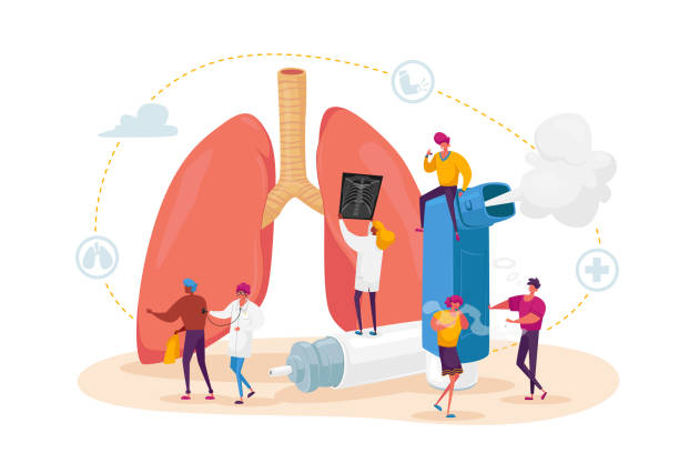 Pulmonology and Asthma Disease. Tiny Characters at Huge Lungs and Inhaler, Respiratory System Examination and Treatment Pulmonology and Asthma Disease Concept. Tiny Characters at Huge Lungs and Inhaler, Respiratory System Examination and Treatment. Internal Organ Inspection Check. Cartoon People Vector Illustration cancer patient stock illustrations