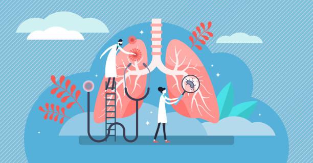 stockillustraties, clipart, cartoons en iconen met pulmonologie vector illustratie. platte kleine longen gezondheidszorg personen concept - longen