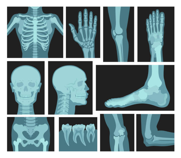 X rays of human body, medical equipment vector art illustration