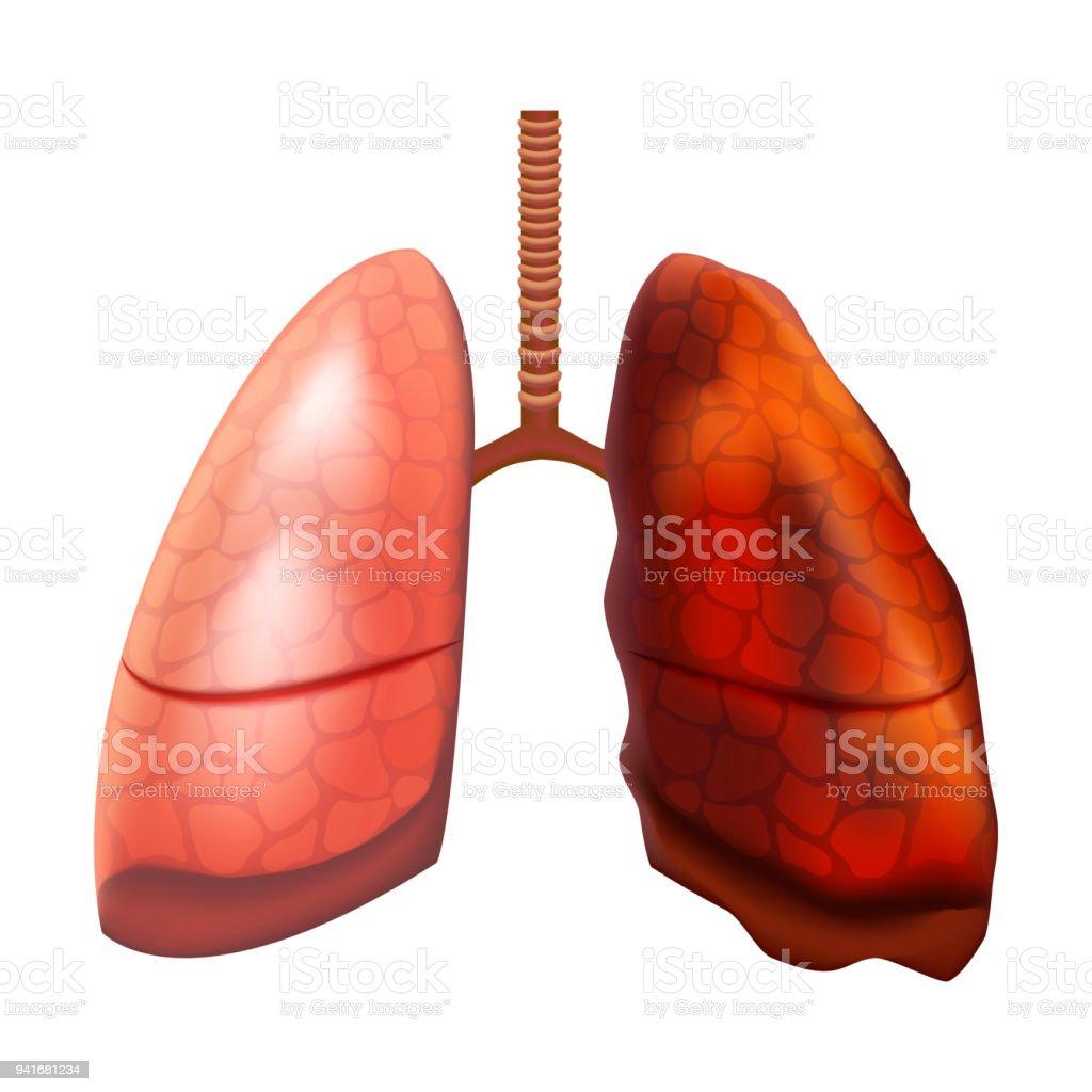 Realistische Detaillierte 3d Menschliche Lunge Innere Organ Vektor ...