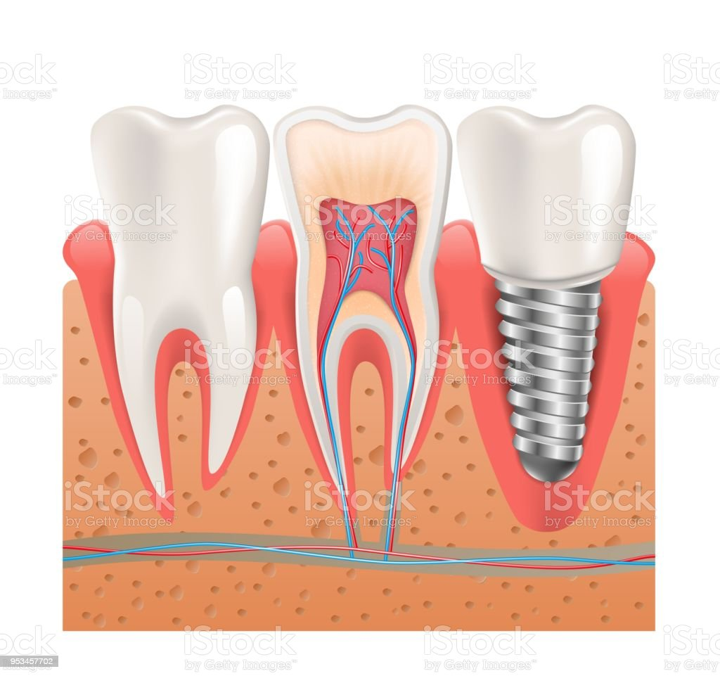 Realistic Healthy Teeth Structure Dental Implant Stock Vector Art ...