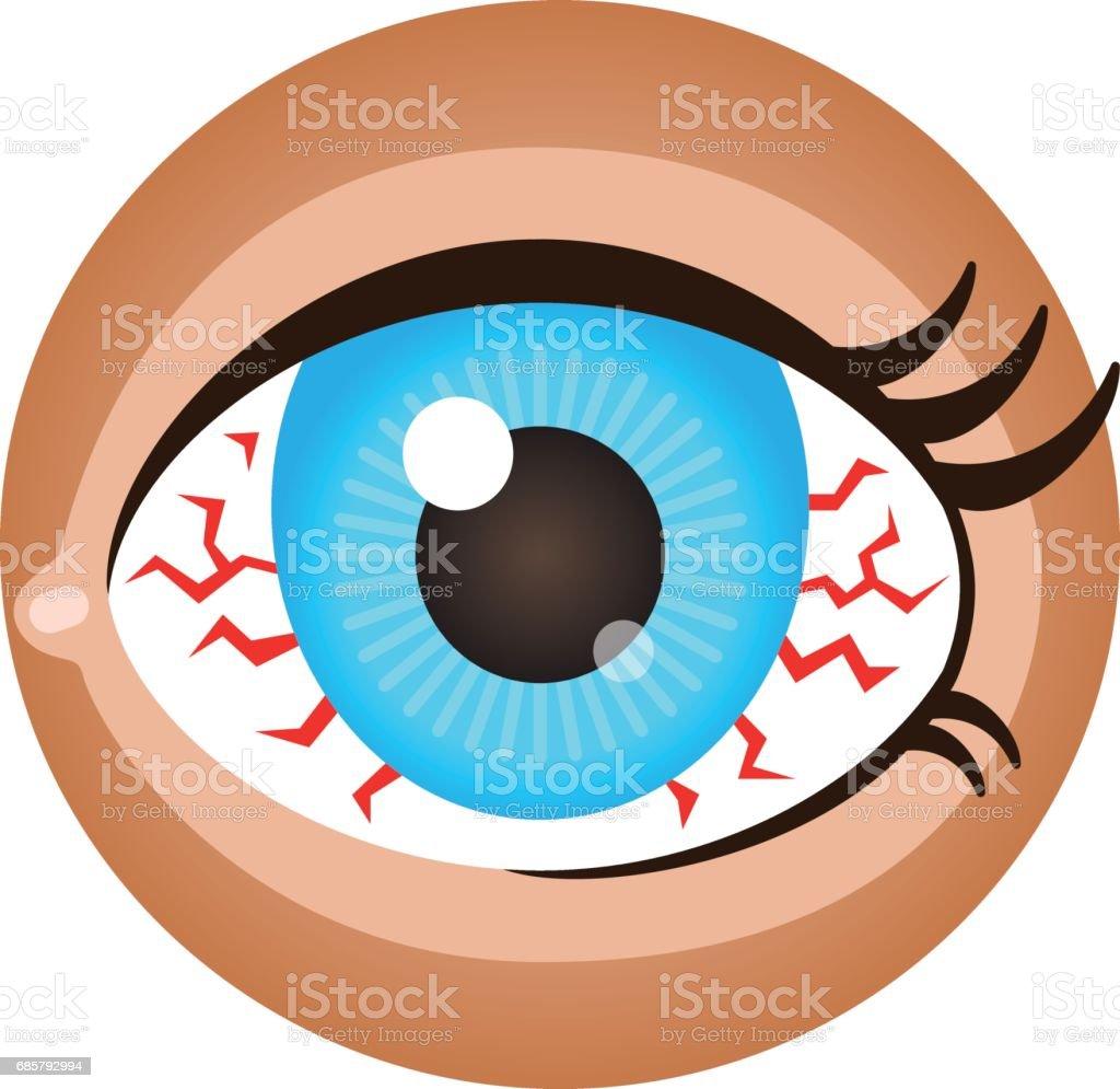 Red eye. vector art illustration