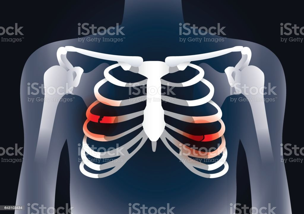 Red Rib Cage Human Diagram Diy Enthusiasts Wiring Diagrams