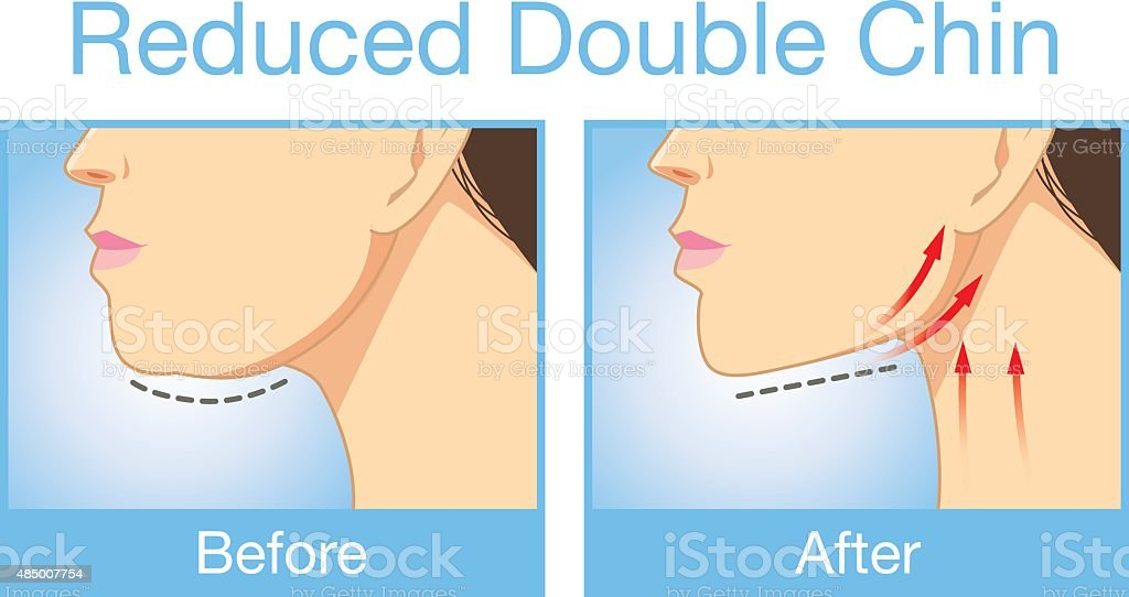 Reduce a double chin vector art illustration