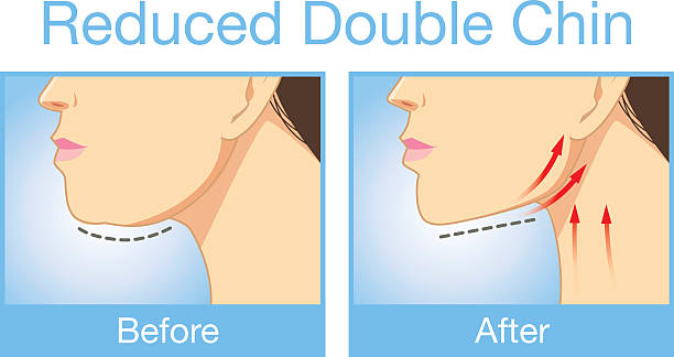 Reduce a double chin Illustration before and after reduce a double chin. Look firming up in after image neck stock illustrations