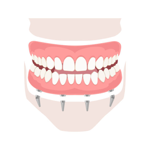 Removable denture on implants Removable denture on implants. Removable denture of the upper and lower jaw on four implants. Implant of the upper and lower jaw. Full arch prosthesis on dental implants. Vector illustration human jaw bone stock illustrations