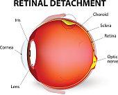 Retinal detachment. Vector diagram