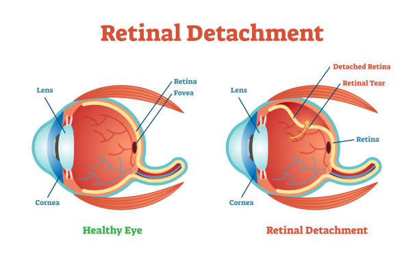 retinal detachment vector illustration diagram, anatomical scheme. - сетчатка stock illustrations