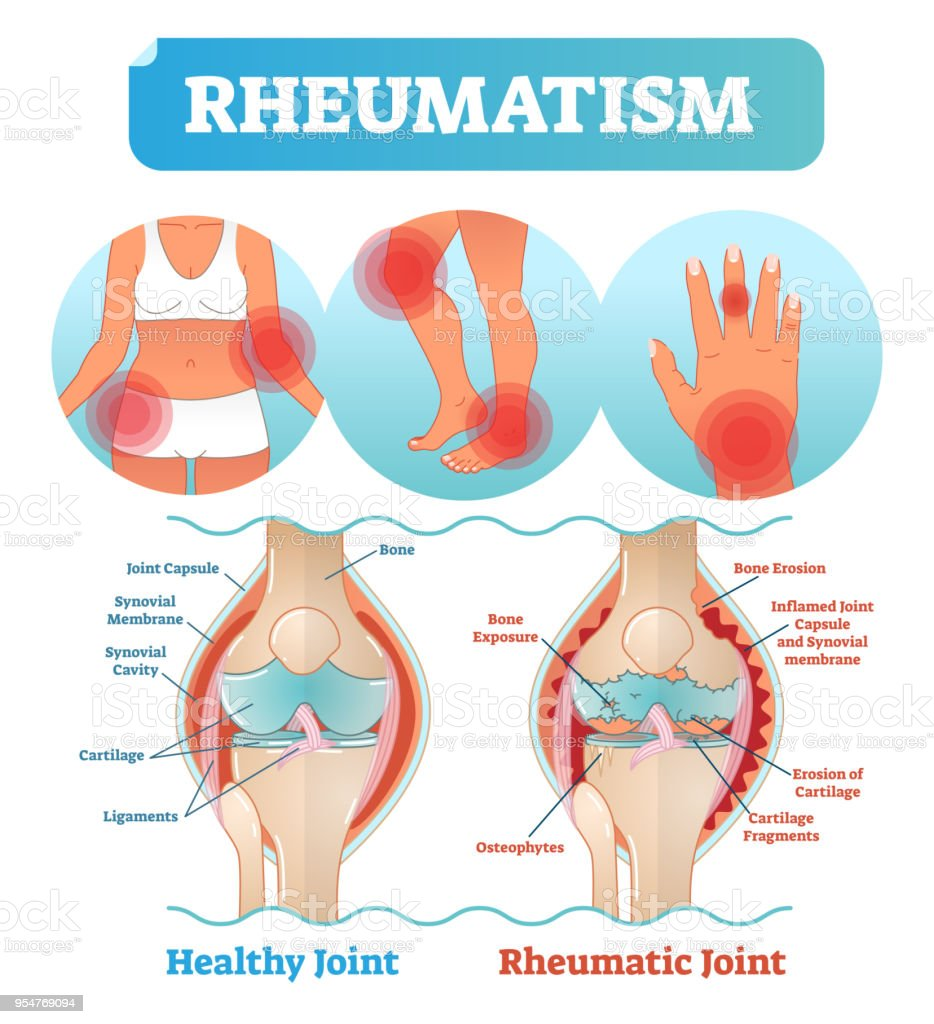 Rheumatism medical health care vector illustration poster diagram with damaged knee erosion and painful body joints. vector art illustration