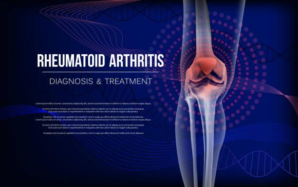 bildbanksillustrationer, clip art samt tecknat material och ikoner med reumatoid artrit ben av knä - lem kroppsdel