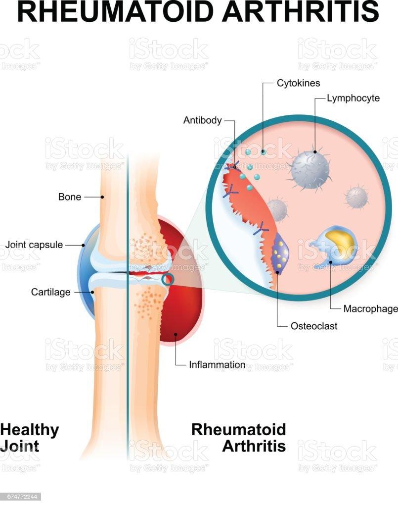 Rheumatoid Arthritis Is An Auto Immune Disease Stock Vektor Art und ...