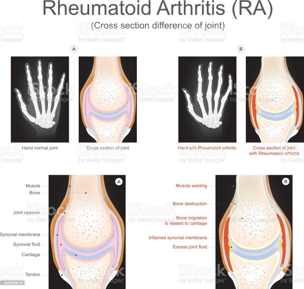 Rheumatoid Arthritis. vector art illustration
