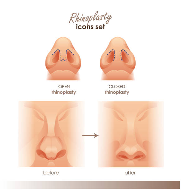 Rhinoplasty. Open and closed rhinoplasty. Side and bottom view. Plastic surgery nose. For Medical and beauty designs Rhinoplasty. Open and closed rhinoplasty. Side and bottom view. Plastic surgery nose. For Medical and beauty designs. For your design septum stock illustrations