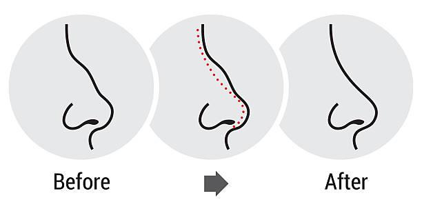 korekcja nosa - nos stock illustrations