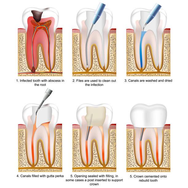 stockillustraties, clipart, cartoons en iconen met root canal behandeling medische vector illustratie op witte achtergrond met beschrijving - dentine