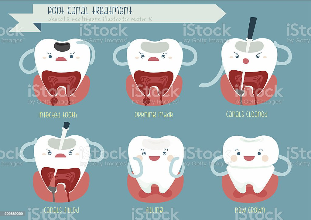 Root canal treatment vector art illustration