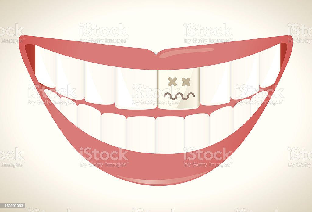 Rotten tooth royalty-free stock vector art