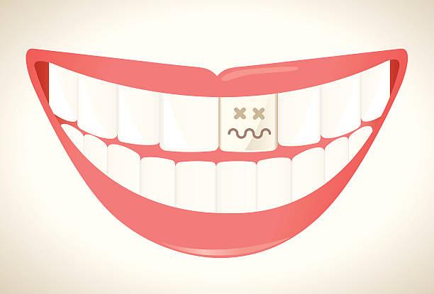 Rotten tooth vector art illustration