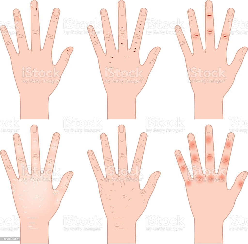 Rough Hand Stock Vector Art & More Images of Anatomy 629517456 | iStock