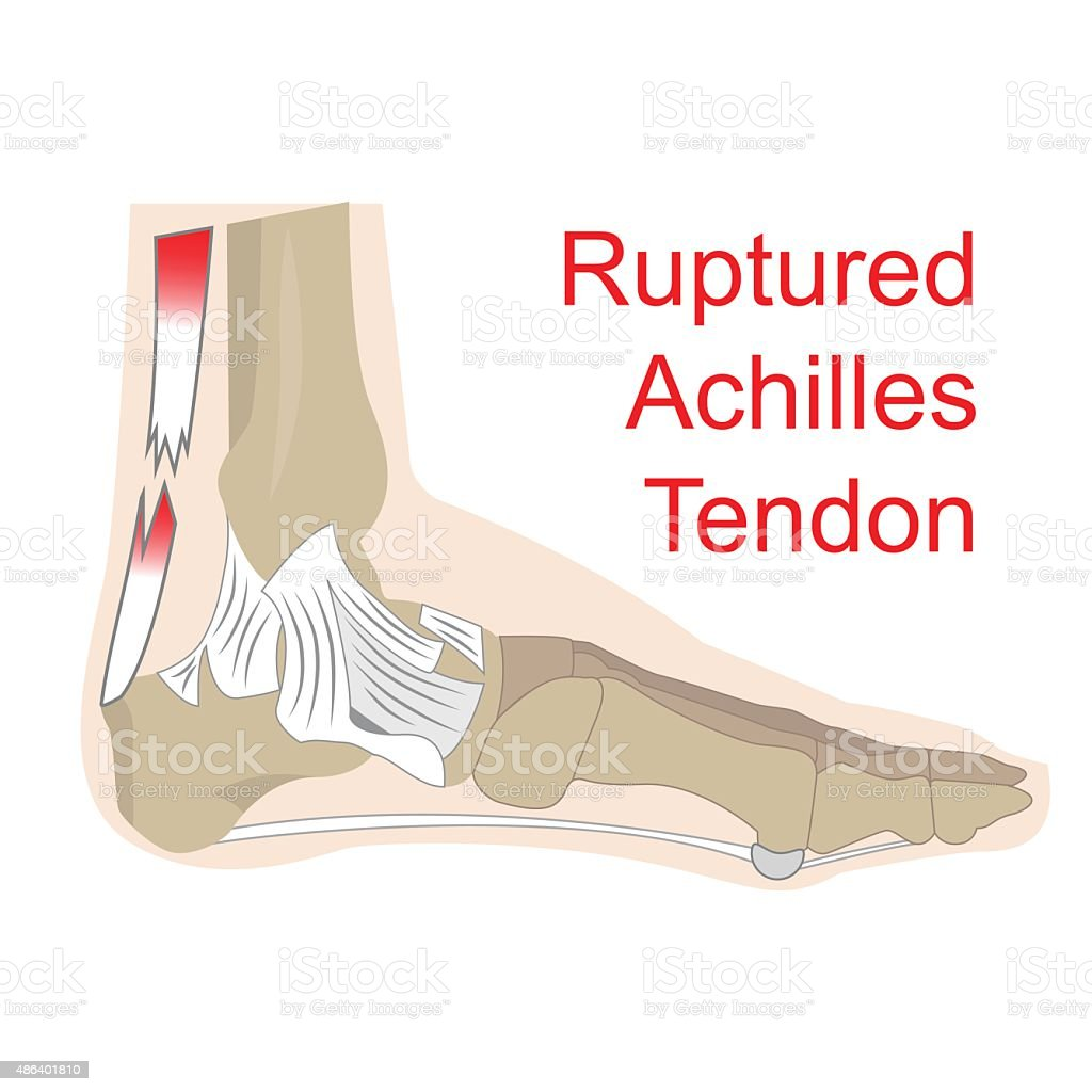 ruptured achilles tendon vector art illustration