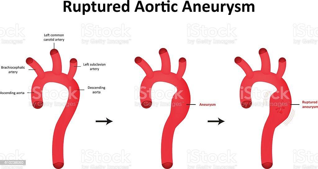 Ruptured Aortic Aneurysm Illustration vector art illustration