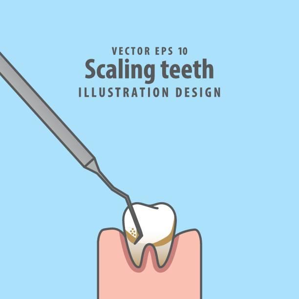 bildbanksillustrationer, clip art samt tecknat material och ikoner med skalning tänder illustration vektor på blå bakgrund. dental koncept. - tandsten