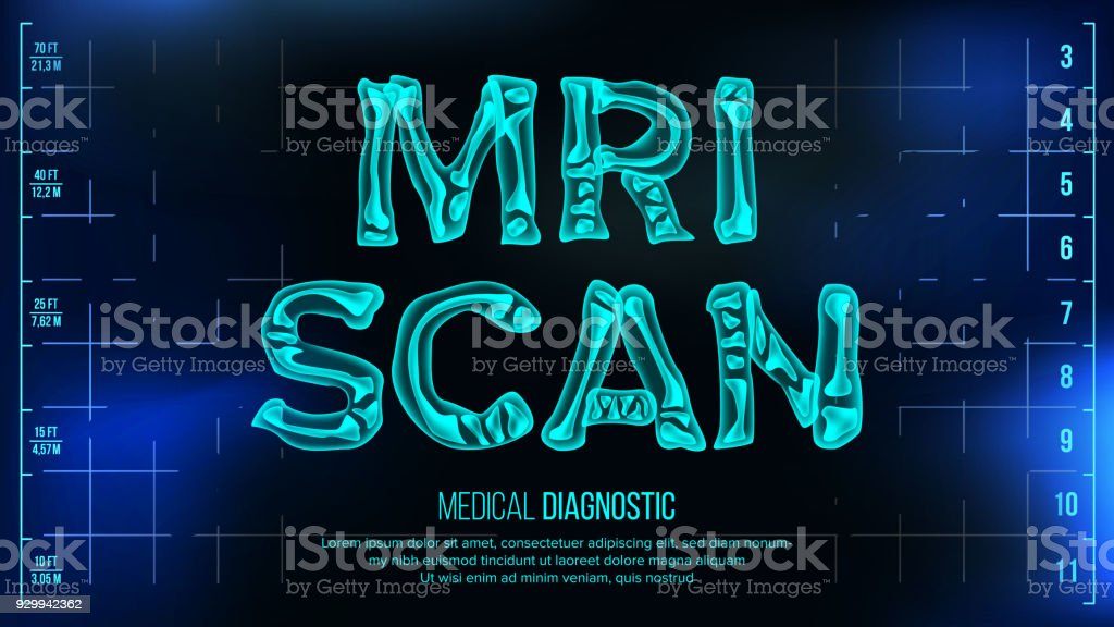MRI Scan Banner Vector. Medical Background. Transparent Roentgen X-Ray Text With Bones. Radiology 3D Scan. Medical Health Typography. Futuristic Technology Illustration vector art illustration