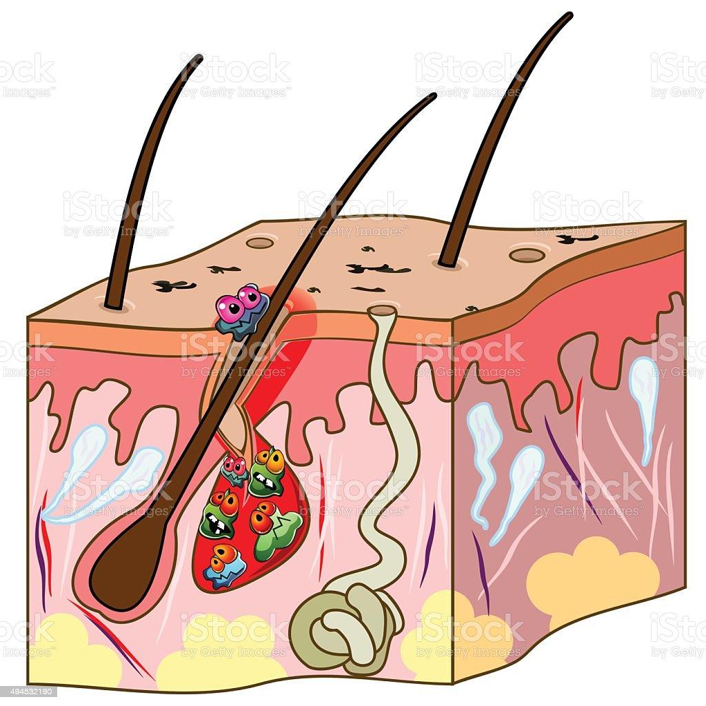 Scheme of skin with acne vector art illustration