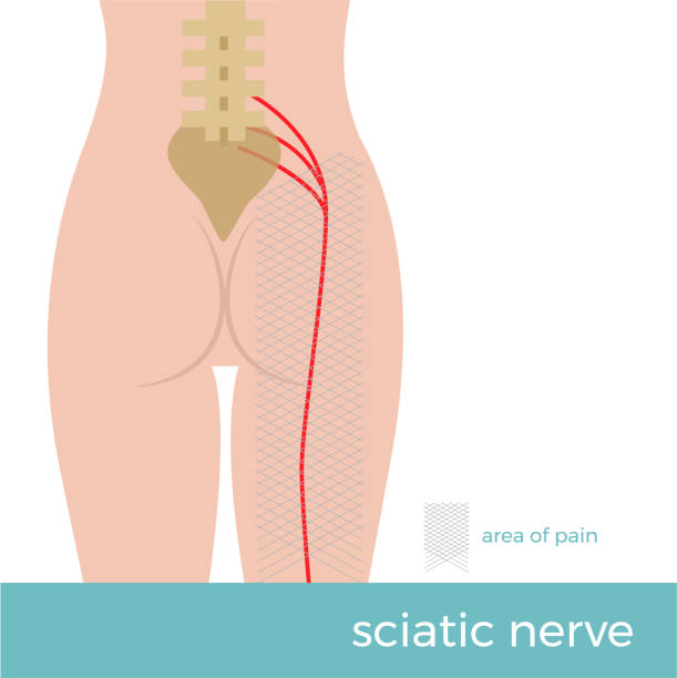 sciatic nerve anatomy vector format illustration sciatic nerve anatomy. illustration showing the schematic course of the nerve and the place where the pain arises. sciatica sciatica stock illustrations