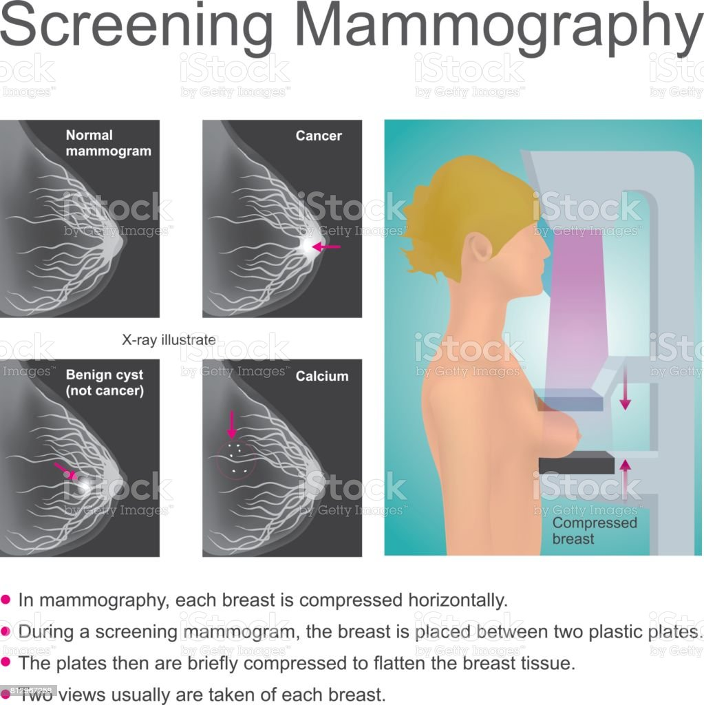 Screening mammography vector art illustration