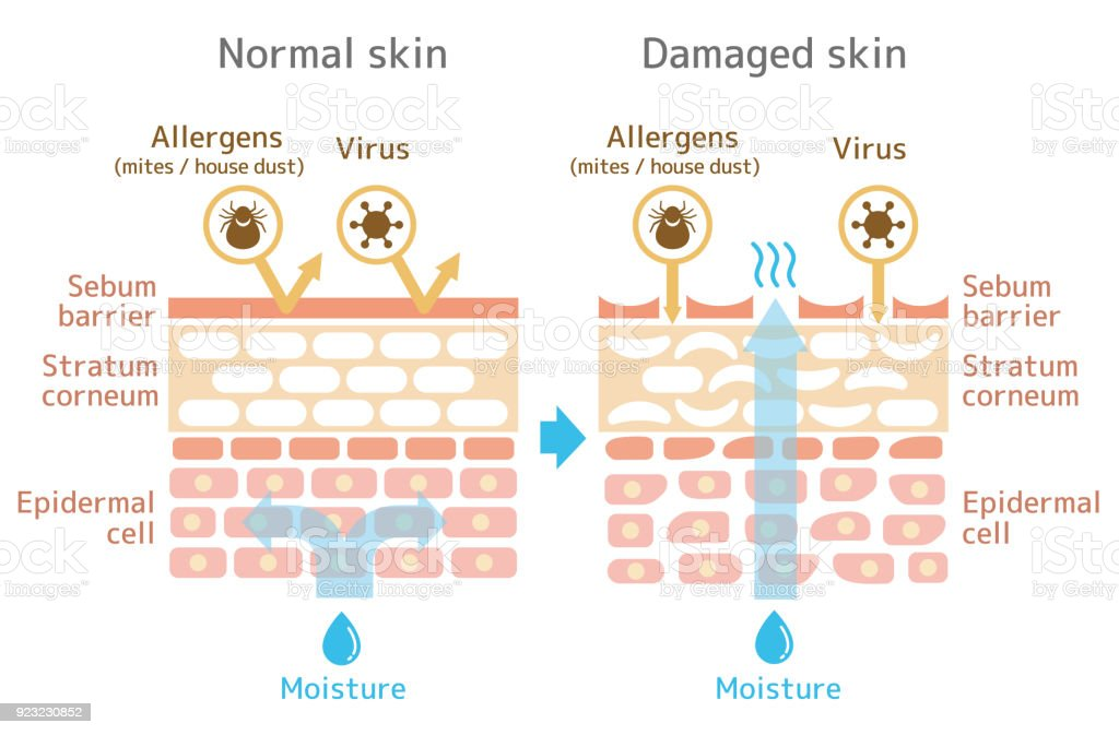 Sectional view of the skin.Comparison illustration of protection effect between healthy skin and wounded skin. vector art illustration