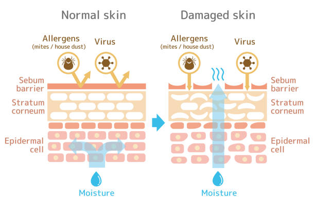 stockillustraties, clipart, cartoons en iconen met aanzicht van de skin.comparison afbeelding van bescherming effect tussen gezonde huid en gewonde huid. - menselijke huid