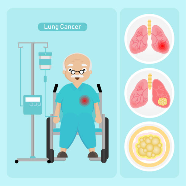 Senior man Patient with Lung Cancer in cartoon style. Senior man Patient with Lung Cancer in cartoon style. cancer patient stock illustrations