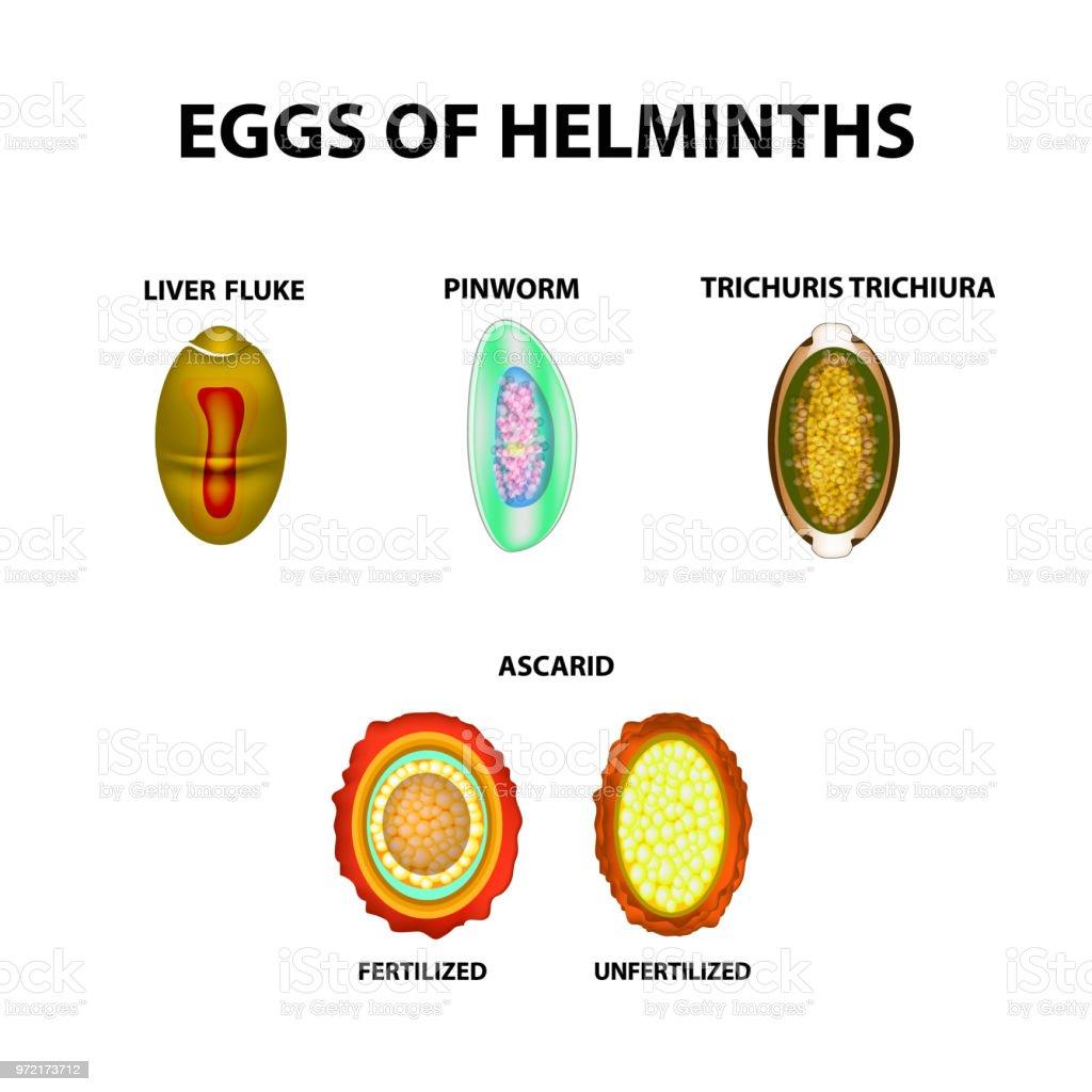 pinworms helminthiasis hasi fájdalom férgek