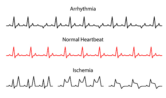 Set Lines heartbeat normal, arrhythmia and ischemia. Line cardiogram heart on white background.  Vector illustration. electro-cardiogram