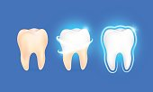 Teeth Whitening. Dental health Concept. Oral Care, teeth restoration. Yellow and white teeth.