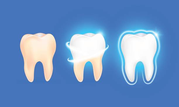 illustrazioni stock, clip art, cartoni animati e icone di tendenza di set of  clean and dirty tooth on blue background, clearing tooth process. - denti