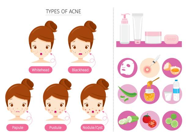 Set Of Girl With Acne On Face And Treatment Icons vector art illustration