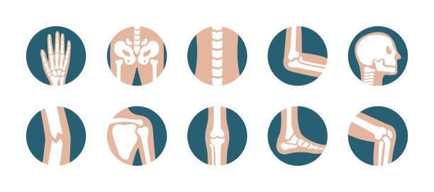 ilustrações, clipart, desenhos animados e ícones de conjunto de ossos e articulações humanas. joelho, perna, pelve, escápula, crânio, cotovelo, pé e mão ícones gráficos vetoriais. ortopédicos e esqueletos símbolos no fundo branco - articulação humana