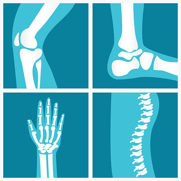 Set of human joints. Set of human joints, knee joint, elbow joint, ankle joint, wrist, skeletal spinal bone structure of Human Spine, emblem or sign of medical diagnostic center or clinic, flat vector illustration. x ray image stock illustrations