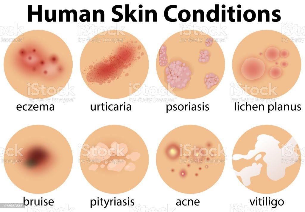 A Set of Human Skin Conditions vector art illustration