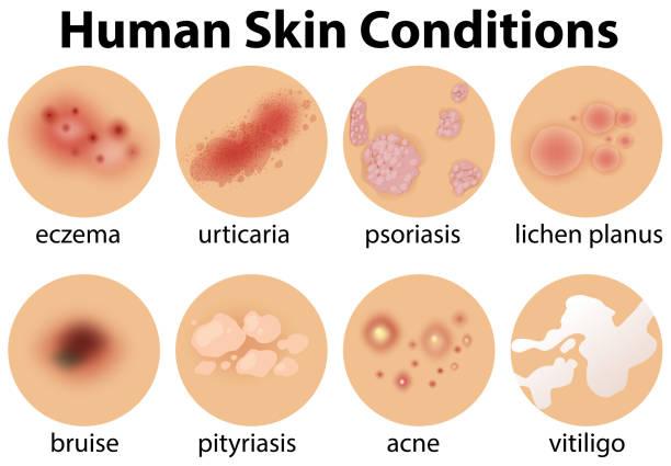illustrazioni stock, clip art, cartoni animati e icone di tendenza di a set of human skin conditions - irritazione