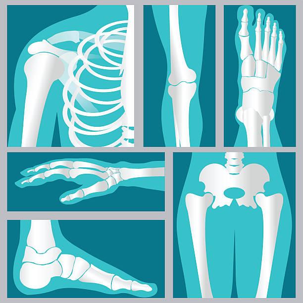 Set of xray of human. vector art illustration